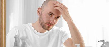 Kann hormonell bedingter Haarausfall Prostatakrebs verursachen?