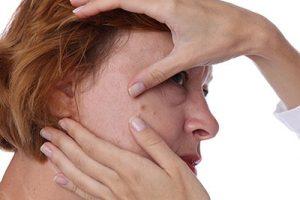Wie Sie mit Hautveränderungen während der Menopause umgehen 2