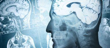 Die Auswirkungen des Alters auf das Hormonsystem