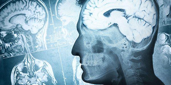 Die Auswirkungen des Alterns auf das Hormonsystem