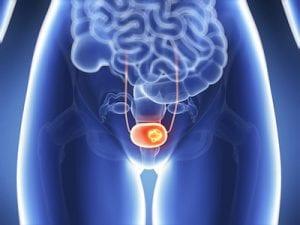 Frauen, die rauchen und früh in die Wechseljahre kommen, haben ein erhöhtes Risiko für Blasenkrebs