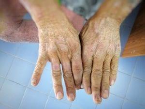 Umgang mit Sklerodermie und dem Älterwerden 1