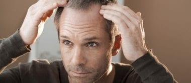 Haarausfall mit plättchenreichem Plasma bekämpfen