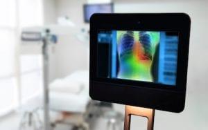 Erhöhte Häufigkeit von Lungenkrebs bei älteren Männern