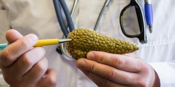 Warum Bauchspeicheldrüsenkrebs so schwer zu behandeln ist