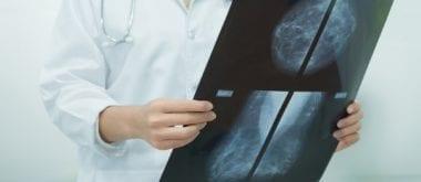 MRT besser als Mammogramme für dichtes Brustgewebe? 1