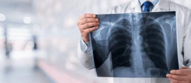 Warum wir im Alter anfälliger für Lungenentzündungen werden 1